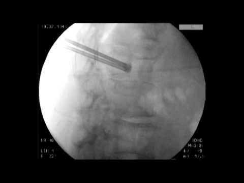 Gonfiore delle articolazioni segni