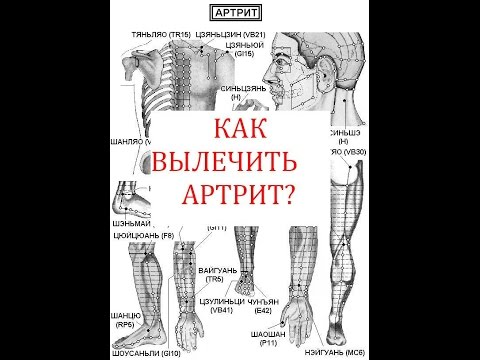 Как вылечить артрит?