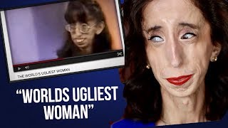 """Ugliest Women in the World"" 