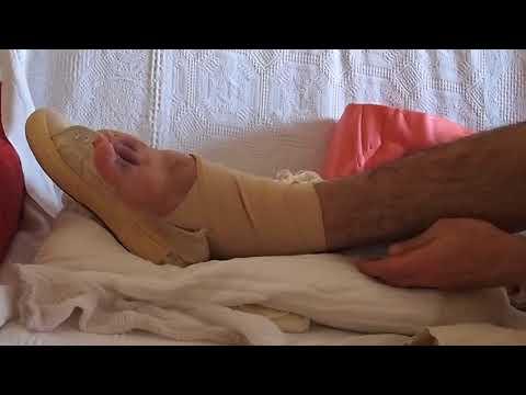 Blocco delle ghiandole sebacee sulla schiena