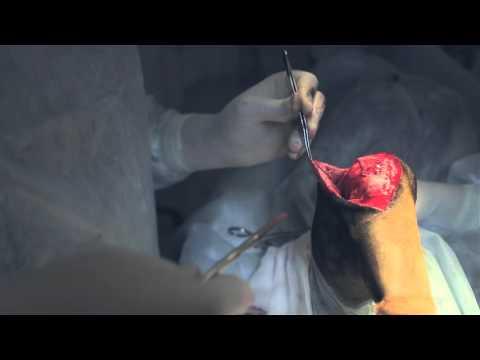 Оперативное лечение разрыва передней крестовидной связки методом лоскутной пластики