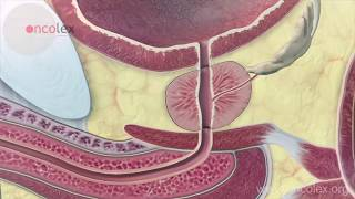 Prostate cancer: Essential facts