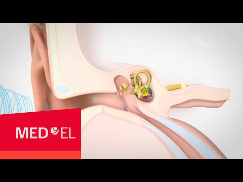 Video about Hearing and How it Works | MED-EL
