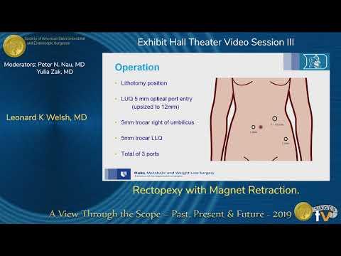 Rektopeksja metodą laparoskopową z użyciem systemu magnesów