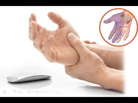 Синдром карпального канала - причины, последствия и лечение