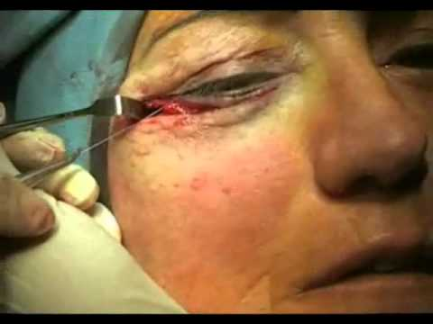 Facial mask anti acne
