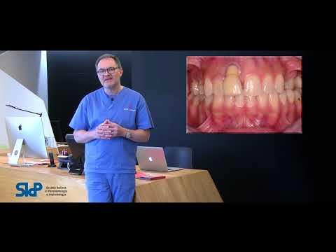 Apparecchiatura per il trattamento della prostatite Mavit SFM 01