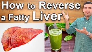 Fatty Liver Treatments – How to Cure Fatty Liver Naturally