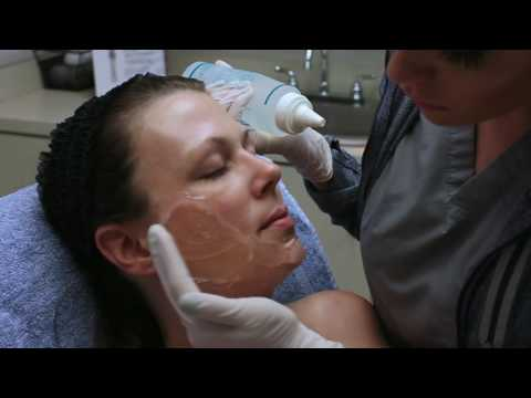 How does the IPL Photofacial work? Watch and learn! | Seiler Skin