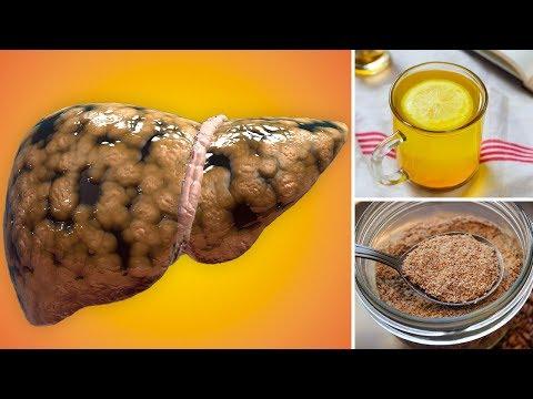 Comment correctement boire le goudron de bouleau au psoriasis