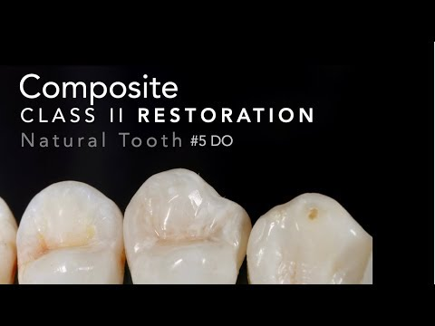 Class II Composite Restoration #5 DO Natural Tooth