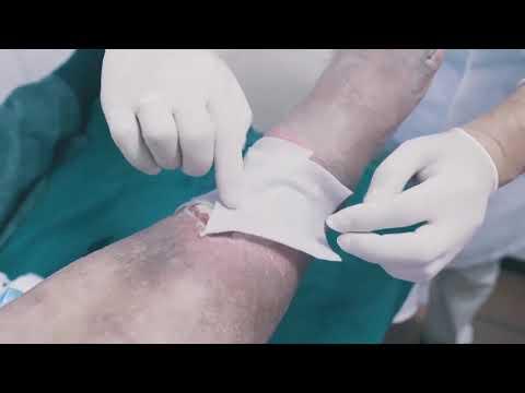 Decât o varicoză teribilă în timpul sarcinii