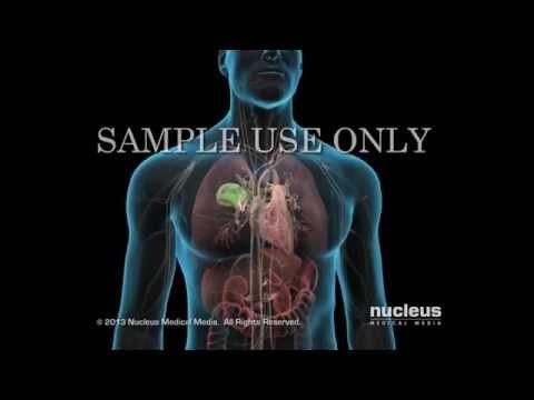 Video Paru paru Basah ( Pneumonia )