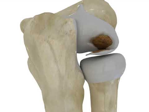 Există o durere ascuțită în articulația șoldului