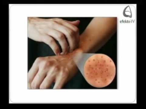 Trattamento di quarzo di dermatite atopic