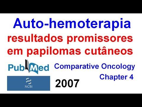 Papillomavirus douleur