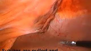 Laparoscopic Paraumbilical hernia repair with mesh fixation