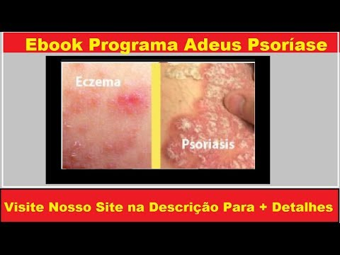 Cálcio no momento de respostas de dermatite atopic