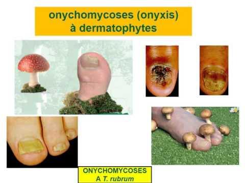 Longuent le psoriasis sur les pieds