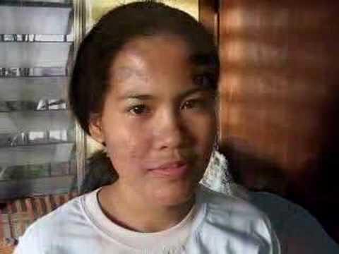 Epektibong mga remedyo laban sa kuko halamang-singaw