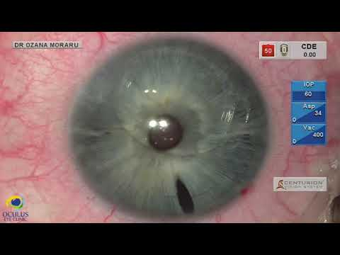 a látási lőtér javítása