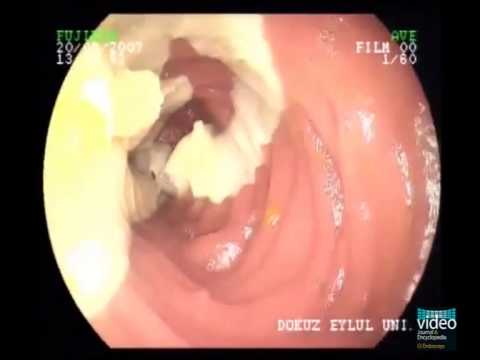 Hpv for throat