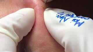 Feeling - acne under the skin
