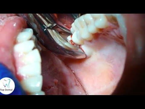 Descubre cómo se hace una extracción de muela en Top Dental