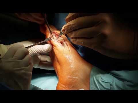 Jak dostać się guzek na kciuka