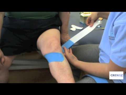 Que para tratar la inflamación de la articulación facial