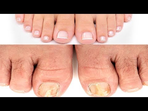 Honey laban fungus toenails