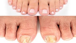 Fungal Nail Infection | 3 Simple Home Remedies to get rid of Toenail Fungus | Instant Relief |