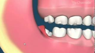 Impacted Wisdom Teeth Removal Animation