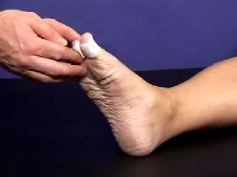 Als ist gribok die Nägel der Beine gefährlich