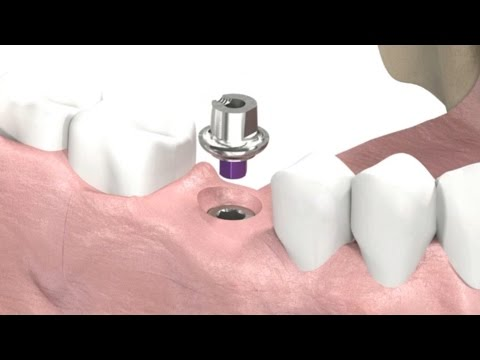 SIC invent Dental Implant - Prosthetic Animation: Single Crown (Closed Tray Technique)