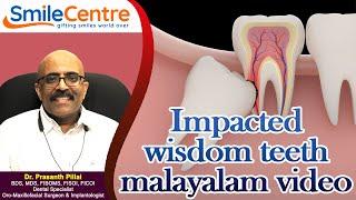 Impacted  teeth - Video
