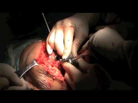 Rimuovere il tumore con caviglia