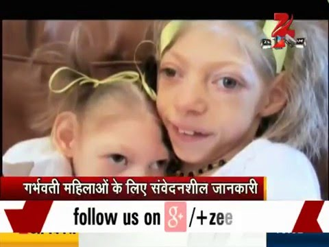 Video Zika Virus: All you need to know about the mosquito-borne disease