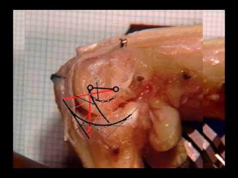 Silizium Osteochondrose