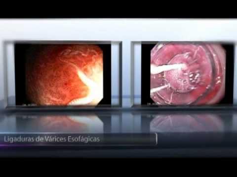 Cancer de pancreas fatores de risco