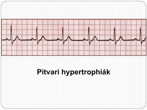 Szívverés 80 magas vérnyomás