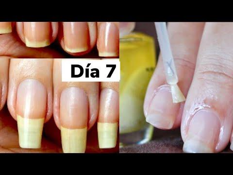 Los ungüentos al tratamiento de la uña encarnada