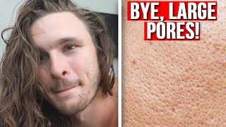 Best Ways To GET RID of Large Pores!