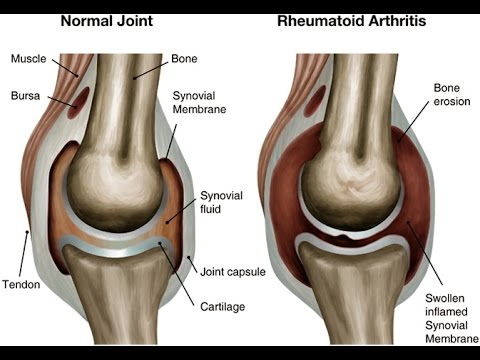 Video How to Treat a Swollen Knee Home Remedies For Knee Swelling FLUID FILLED KNEE