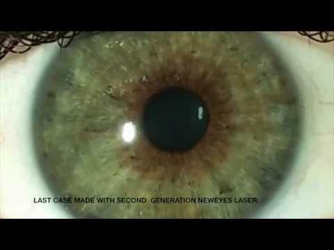 Гарньер защита от морщин вокруг глаз отзывы