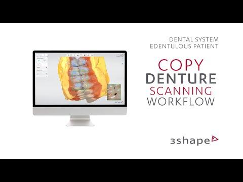 3Shape TRIOS Edentulous patient - Copy denture scanning workflow