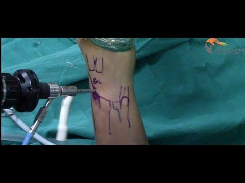 Unguente analgezice eficiente pentru articulații