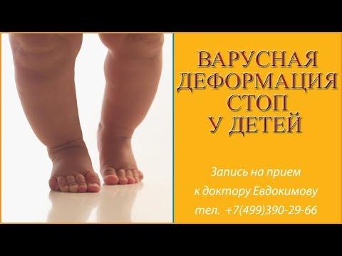 Варусная деформация стоп у детей. Варус причины, симптомы, лечение остеопатией.