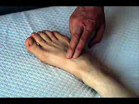 Algunos de los síntomas no refleja la hipertensión portal