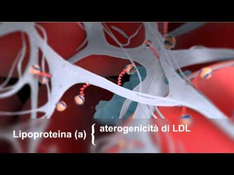 Trattamento di varicosity in SPb il laser
